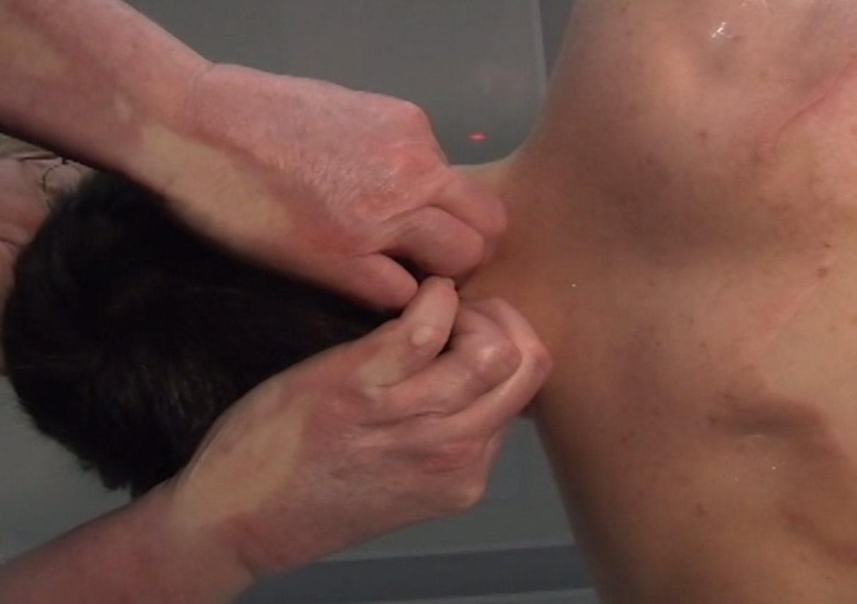20. Anne Wales Cervical Technique