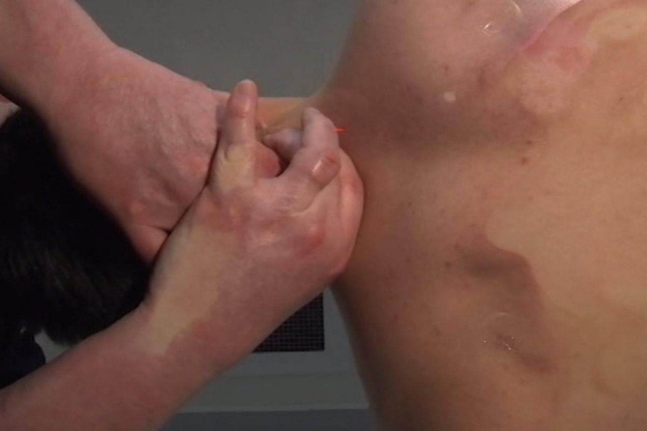22. Lower Cervicals Technique (CROW)