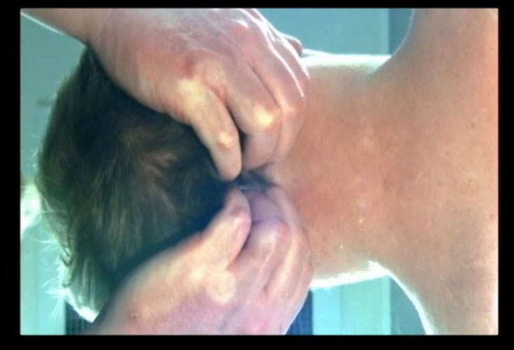 4. Anne Wales Occiput Technique